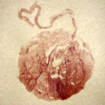 Unique Placenta Print.